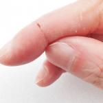 治らない指のひび割れは乾燥が原因!徹底保湿で指のひび割れを改善